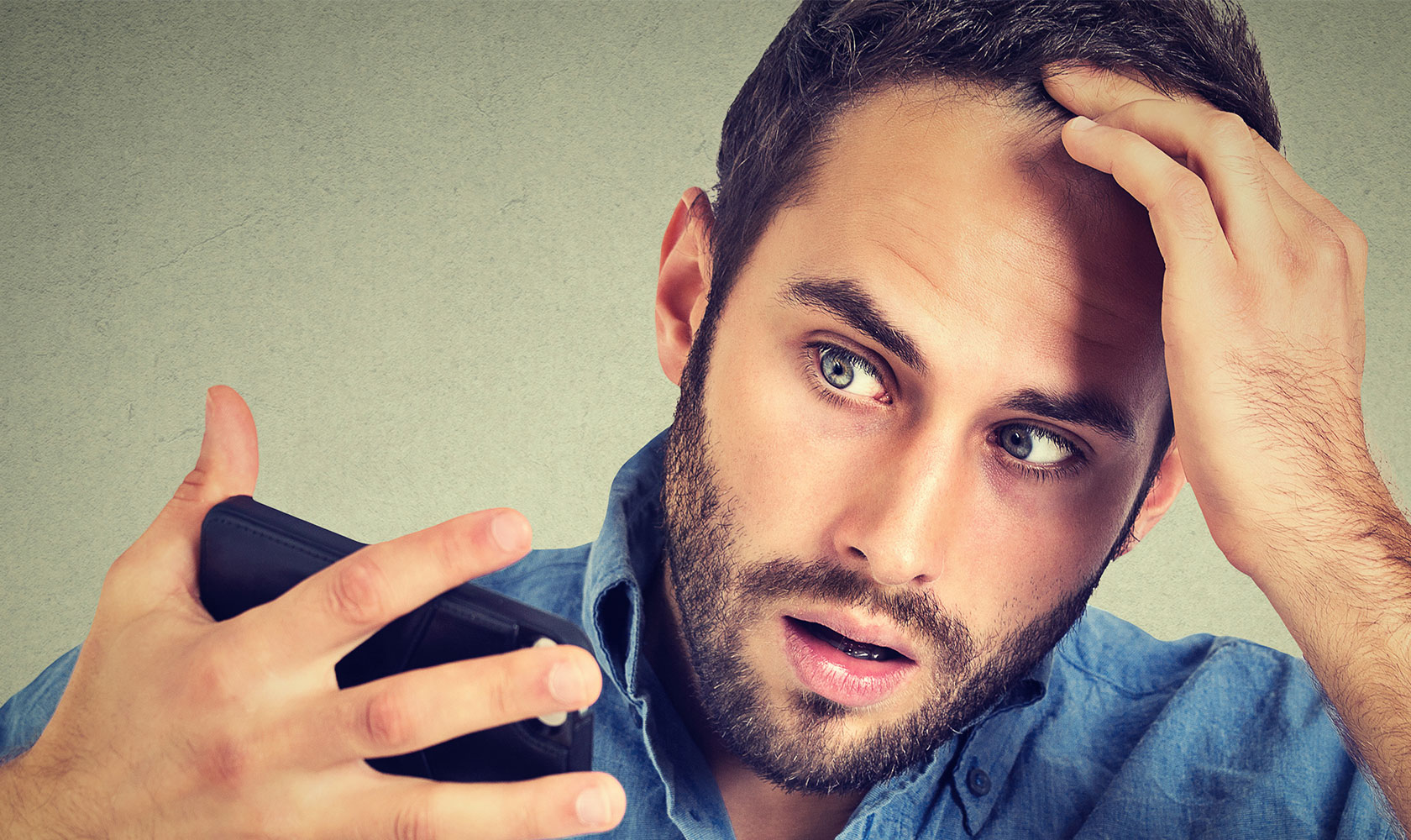 Stress and Hair Loss: Are They Related?