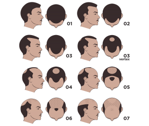 norwood-scale-male-hair-loss